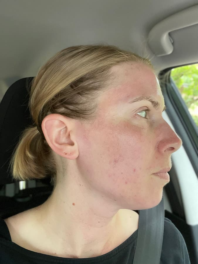 the side of a woman's face